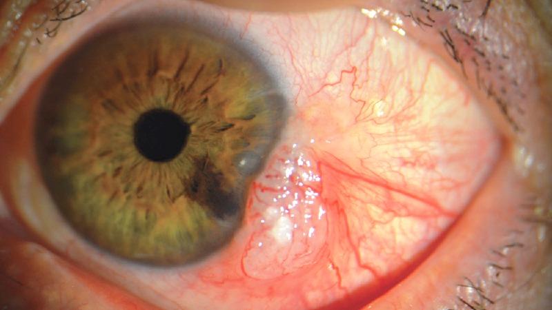 virus HPV na očeh